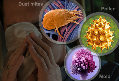 Allergies 13